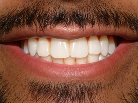 Ranbir Singh Invisalign After