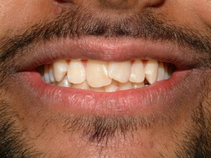 Ranbir Singh Invisalign Before